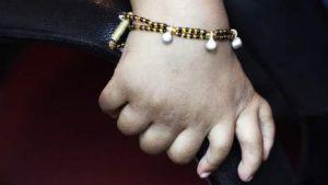 Recette Indien naît avec 34 doigts et orteils